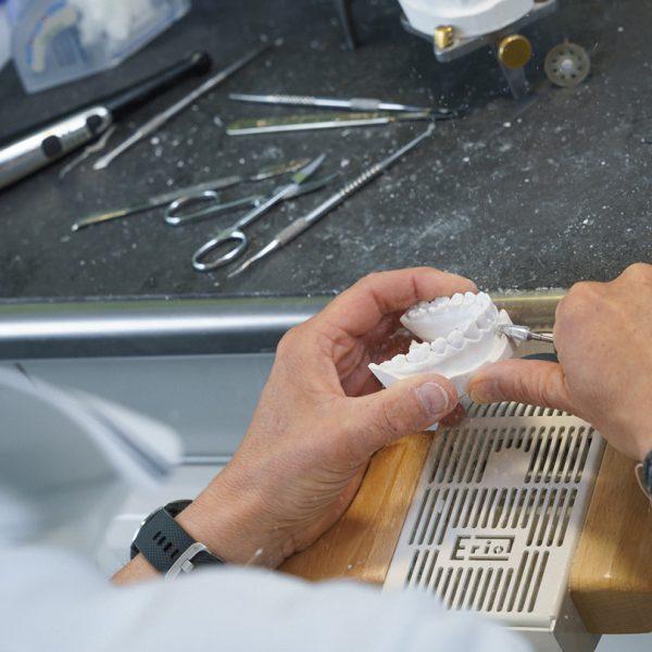 Perfect Smile Kieferorthopädie in Klagenfurt & Wolfsberg - Techniker beim Anfertigen eines Zahnabdrucks